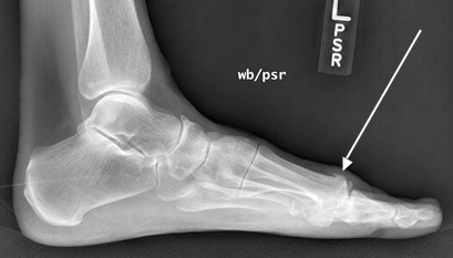 Lateral x-ray of hallux rigidus. Note the spurs that form on the top of the joint.